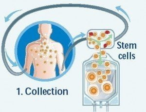 harvested-peripheral-blood-stem-cells