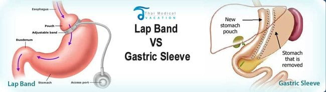 gastric-sleeve-thailand-vs-gastric-bypass-thailand-comparison