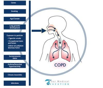 COPD-Treatment-Thailand