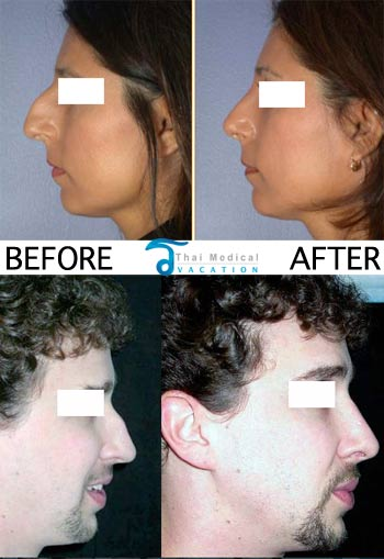 nose-job-surgery-rhinoplasty-bangkok-thailand