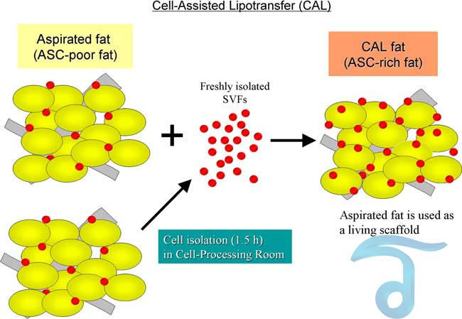 Cell-Assisted-Lipotransfer-Thai-medical-vacation