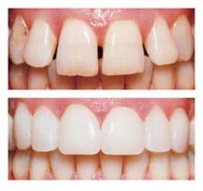 Cosmetic-dentistry-Thailand