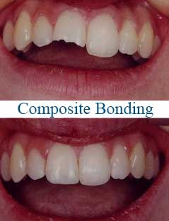 composite-bonding-thailand