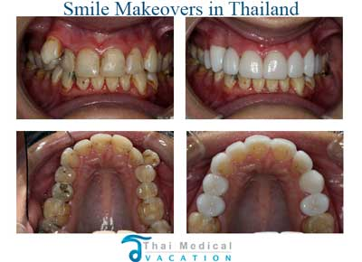 smile-makeover-thailand-bangkok-before-after