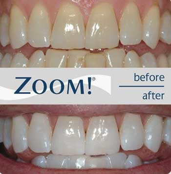 zoom-2-laser-teeth-whitening