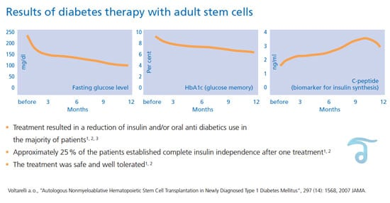 stem-cell-diabetes-treatment