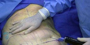 tumescent-liposuction-thailand-fat-removal