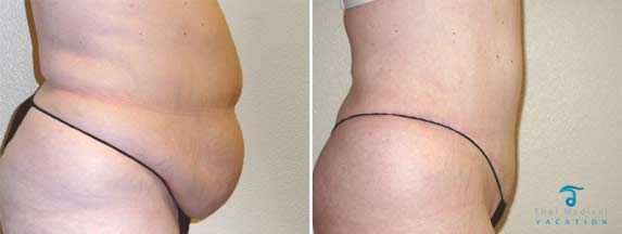Tummy-Tuck-Thailand-Surgery-2