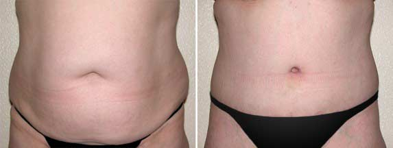 Tummy-Tuck-Thailand-Surgery