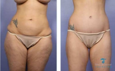 Tummy-Tuck-Thailand-before-and-after