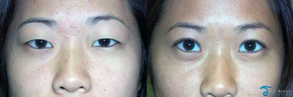 asia-eyelid-surgery-thailand