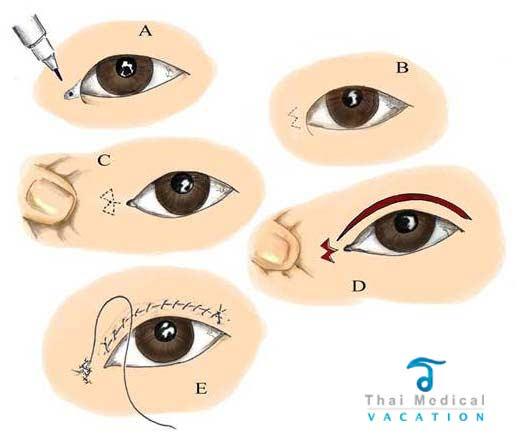 Double Blepharoplasty  U0026 Asian Eyelid Surgery