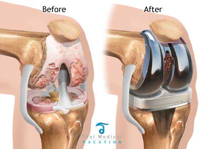 before-after-knee-replacement-in-thailand-pic
