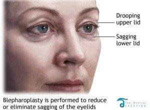 blepharoplasty-thailand