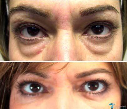 eyelid-surgery-thailand