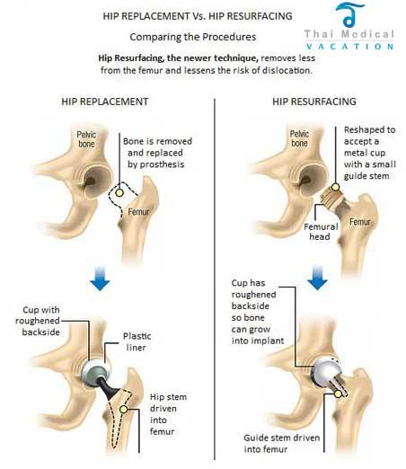hip-replacement-thailand-vs-hip-resurfacing-thailand