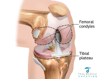 normal-knee-knee-replacement-in-Thailand