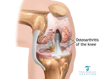 osteoarthritis-knee-replacement-in-thailand