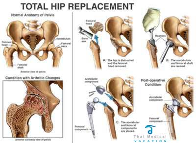total-hip-replacement-thailand