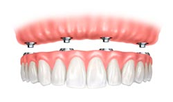 All-on-4-dental-implant-thailand