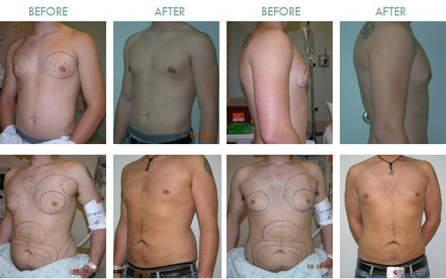Male-Breast-Reduction-Thailand