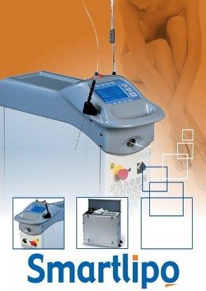 Smart-Lipo-Laser-thailand