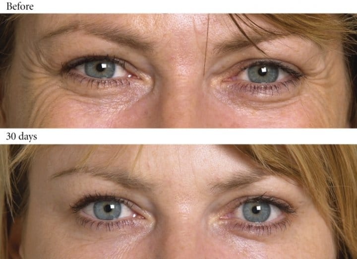 genuine botox amp medical grade dermal fillers