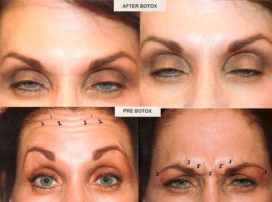 Genuine Botox Amp Medical Grade Dermal Fillers