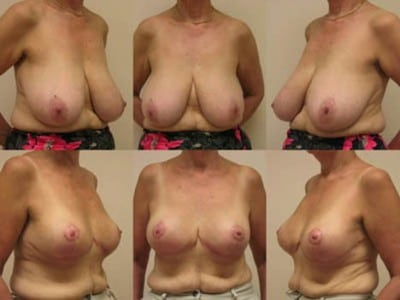 breast-reduction-Thailand-before-and-after