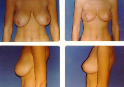 breast-reduction-in-thailand-plastic-surgery