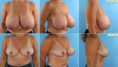 breast-reduction-thailand-surgery