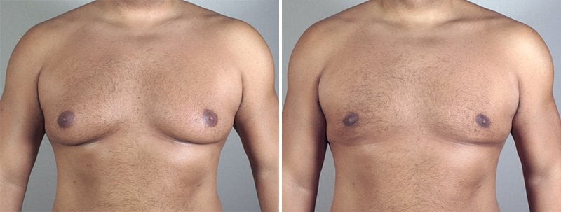 male-breast-reduction-in-thailand