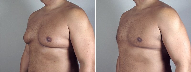 male-breast-reduction-thailand-2