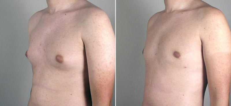 male-breast-reduction-thailand-3