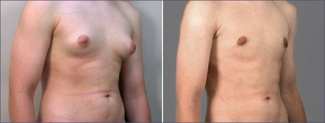 male-gynecomastia-bangkok