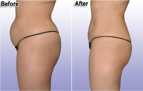 smart-lipo-thailand-before-and-after