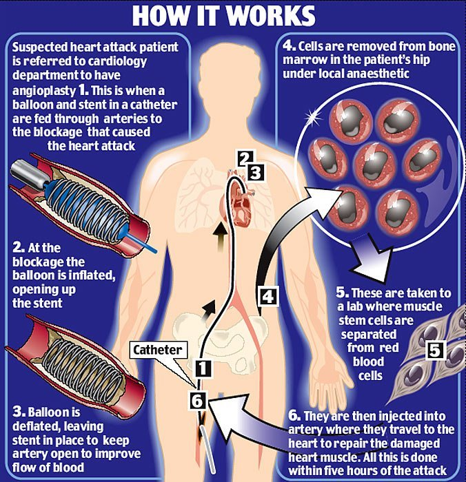 Stem Cell Therapy for Heart Disease Illustration
