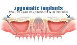 zygomatic-implants-thailand-diagram