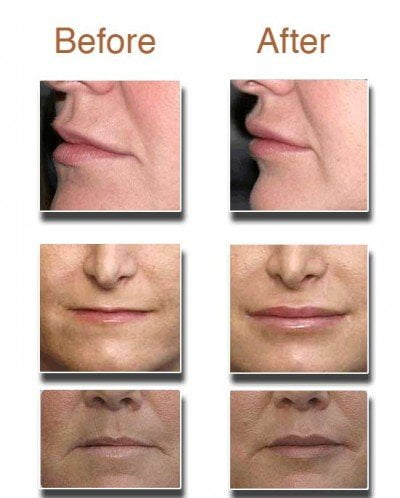 Before-and-After-lip-augmentation-thailand