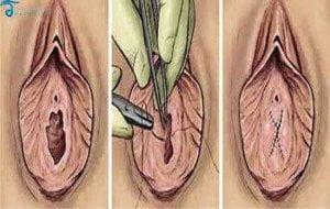 Hymenoplasty-Thailand-Hymen-implant-in-Thailand