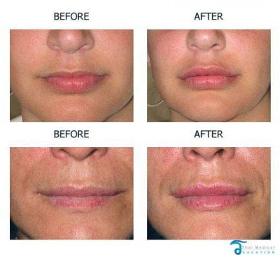 Lip-Augmentation-thailand-Before-and-After-Photos-Cost