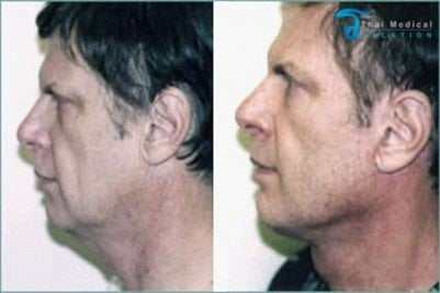 Neck-Lift-Thailand-Mike-before-after
