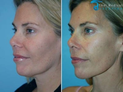 Neck-Lift-Thailand-liposuction-before-after