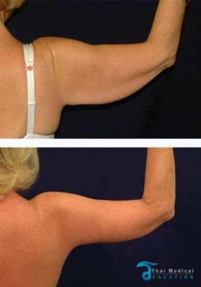 arm-lift-thailand-before-after-lydia