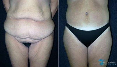 body-lift-thailand-before-after