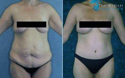 body-lift-thailand-sam-before-after-body-contouring-thailand