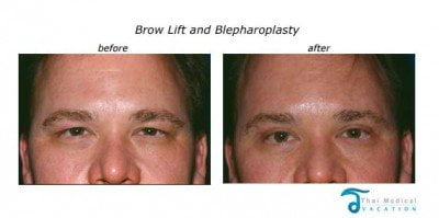 brow-lift-and-bleph-thailand