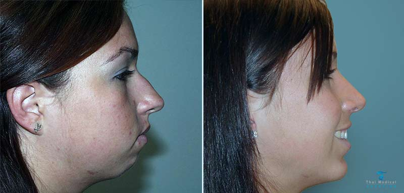 chin-augmentation-thailand-before-after-2