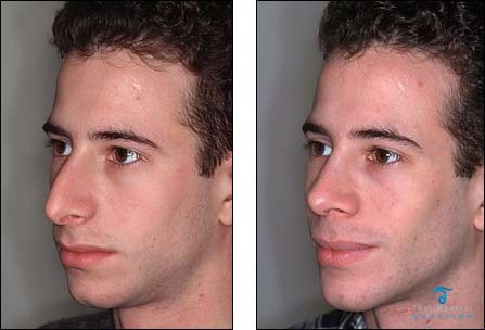 chin-augmentation-thailand-before-after