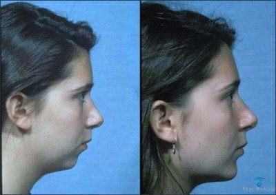 chin-implants-thailand-before-after-2